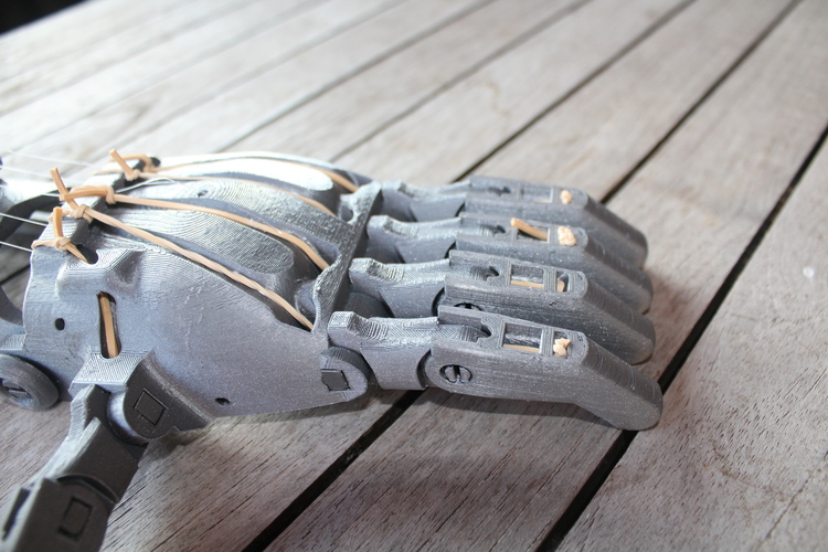 enable prosthetic hand with changeble finger positions 3D Print 100010