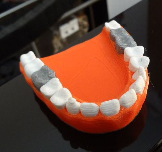 Teeth with a silver teeth prothesis 3D Print 120142