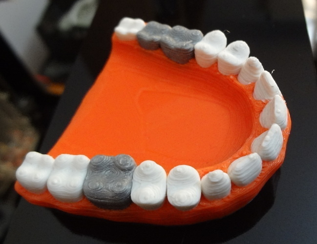 Teeth with a silver teeth prothesis 3D Print 120143