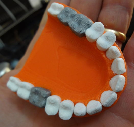 Teeth with a silver teeth prothesis 3D Print 120144