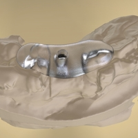 Small Digital Anatomical Screw Retained Abutment 3D Printing 127114