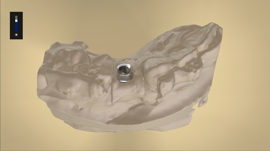 Digital Anatomical Screw Retained Abutment 3D Print 127119