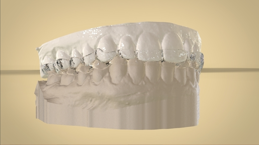 Digital Dental Bite splint 3D Print 127342