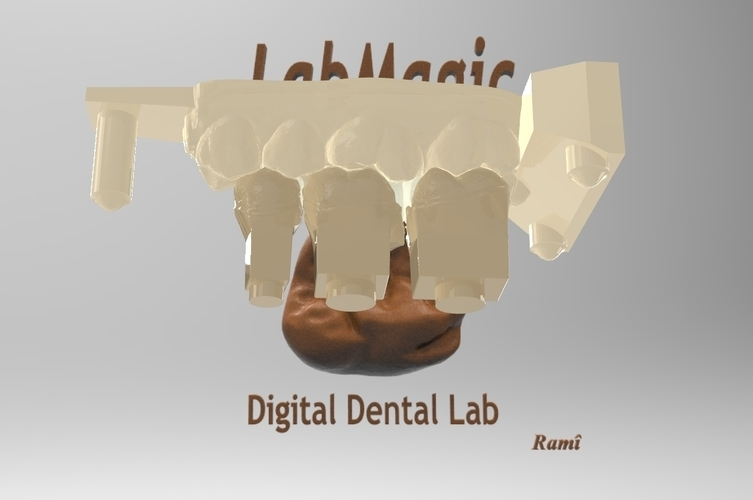 ​Digital Dental Inlay Bridge Model for 3D Printing  3D Print 128448