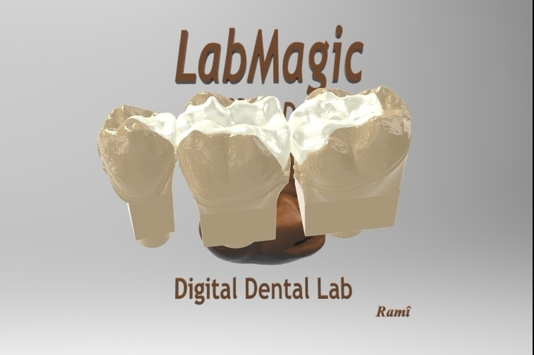 ​Digital Dental Inlay Bridge Model for 3D Printing  3D Print 128449