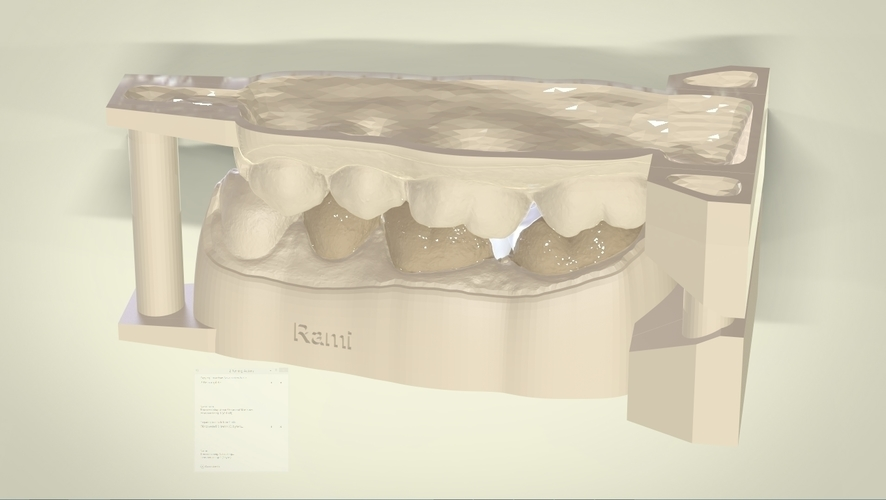 ​Digital Dental Inlay Bridge Model for 3D Printing  3D Print 128450