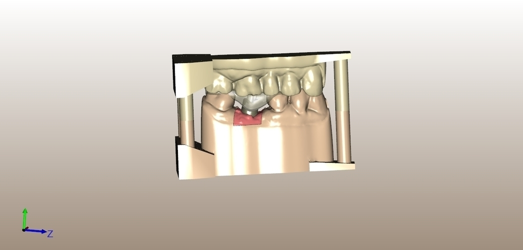 Digital Dental Implant Model with Positioning Guide 3D Print 128760
