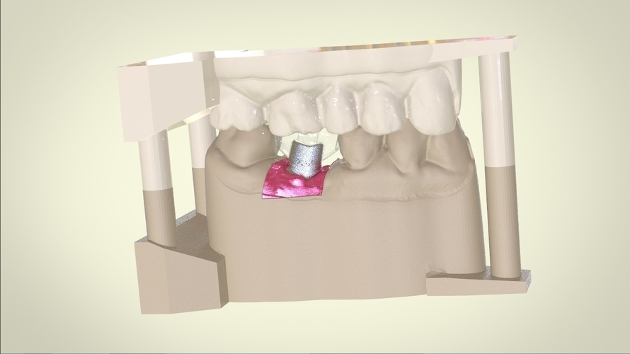 Digital Dental Implant Model with Positioning Guide 3D Print 128763