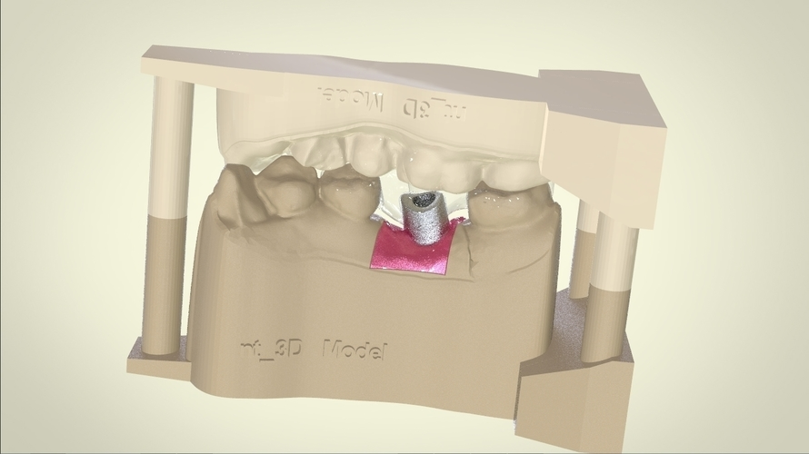 Digital Dental Implant Model with Positioning Guide 3D Print 128764