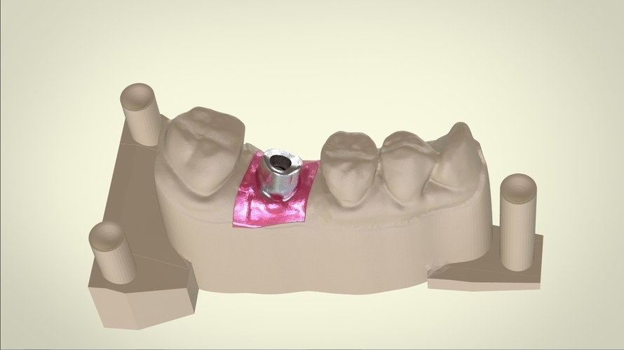 Digital Dental Implant Model with Positioning Guide 3D Print 128766
