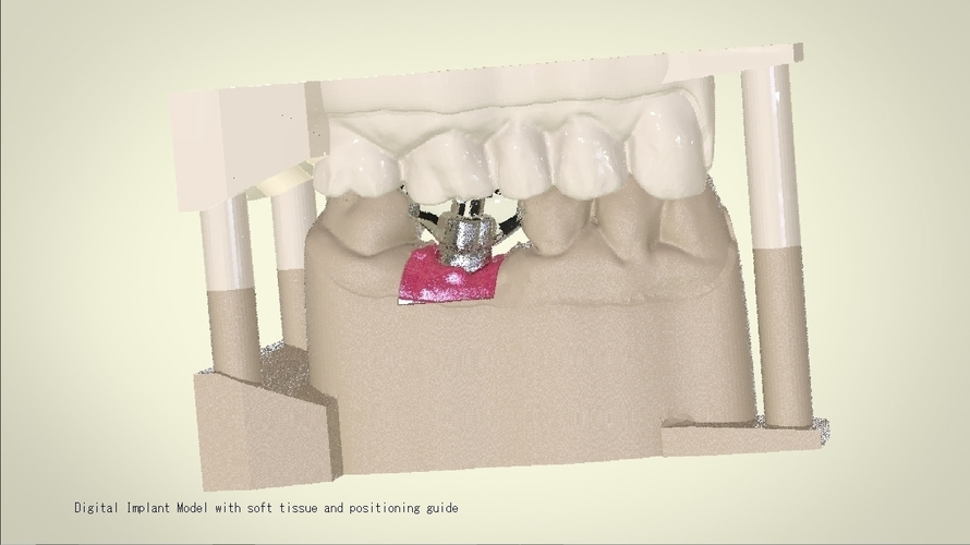 Digital Dental Implant Model with Positioning Guide 3D Print 128768
