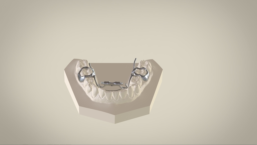 Digital Dr.Williams's Ortho Appliance  3D Print 132600