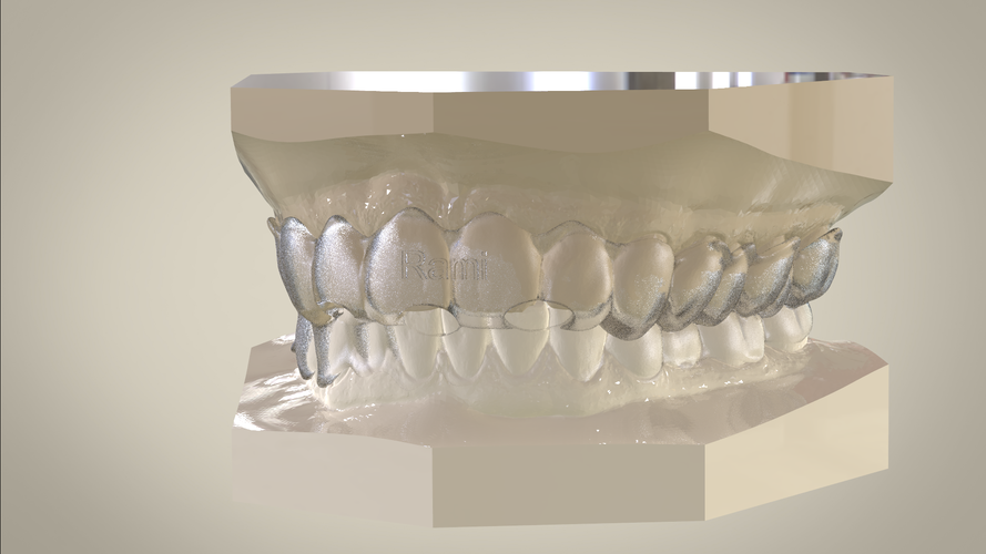 ​Digital Ortho Tooth Positioner 3D Print 141406