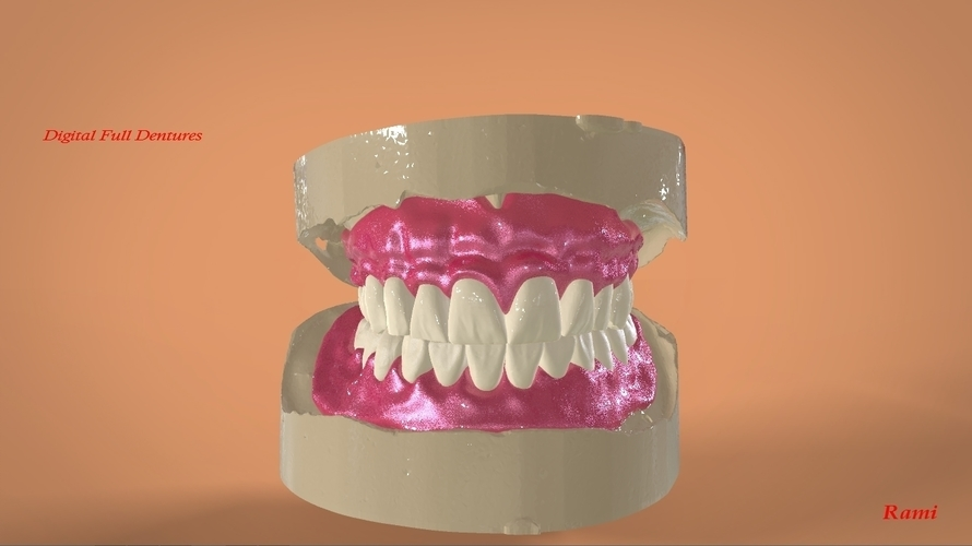Digital Full Dentures 3D Print 159105