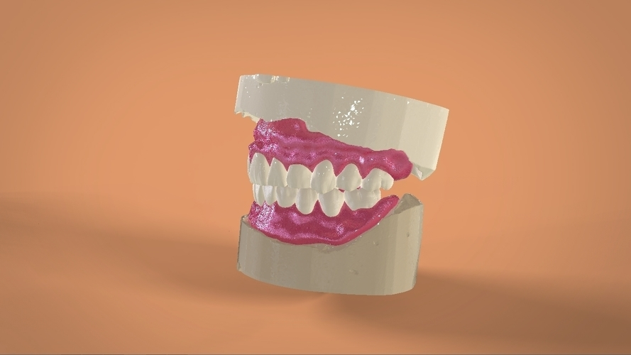 Digital Full Dentures 3D Print 159106