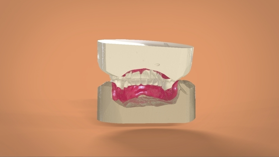 Digital Full Dentures 3D Print 159107