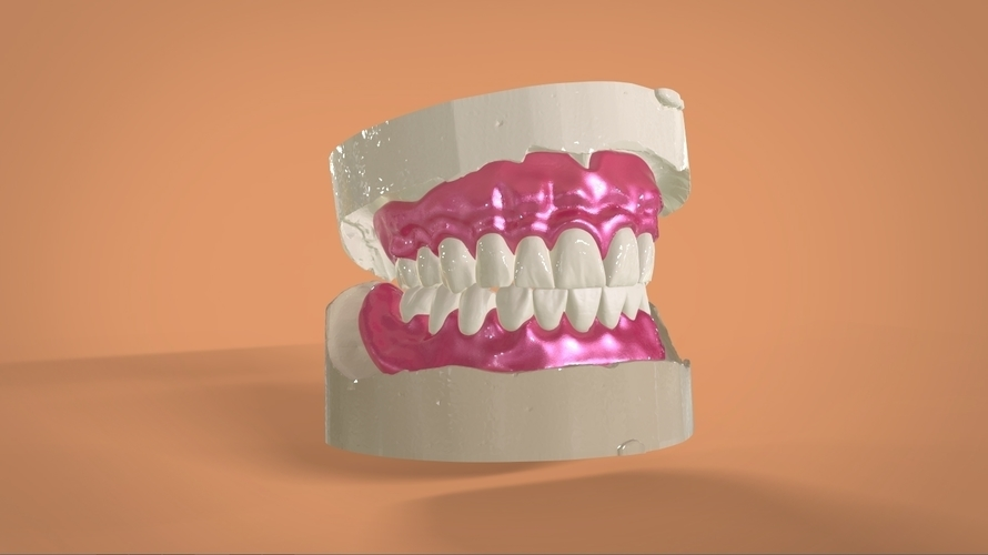 Digital Full Dentures 3D Print 159108