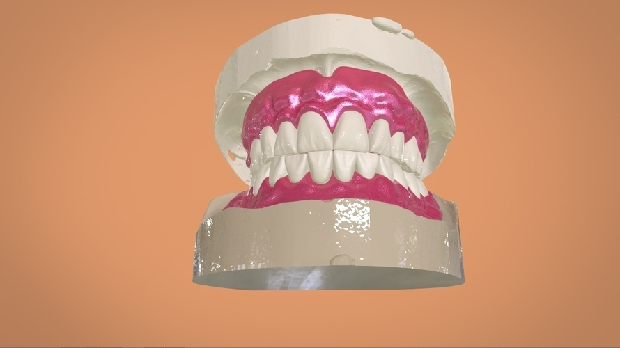 Digital Full Dentures 3D Print 159109
