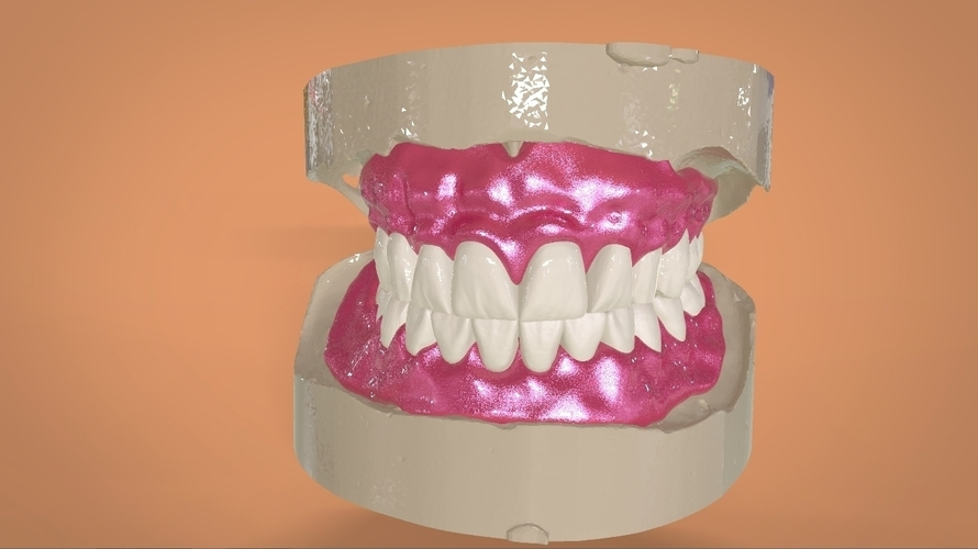 Digital Full Dentures 3D Print 159110