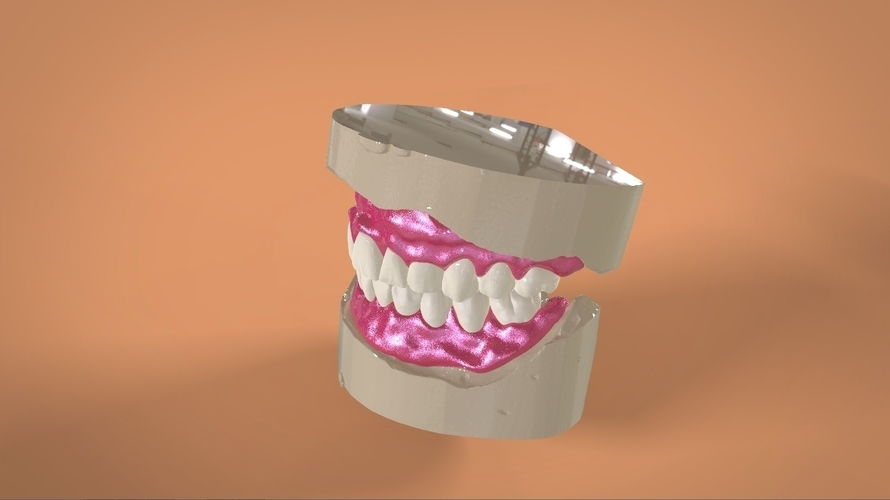 Digital Full Dentures 3D Print 159111