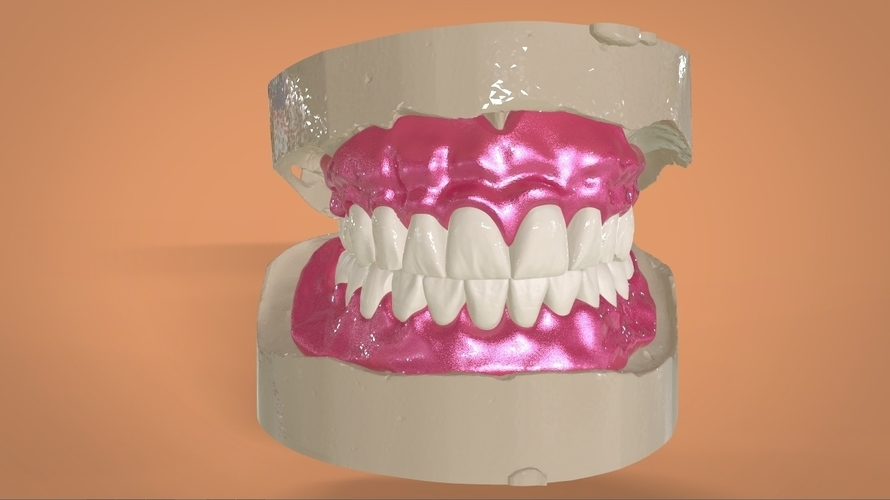 Digital Full Dentures 3D Print 159112
