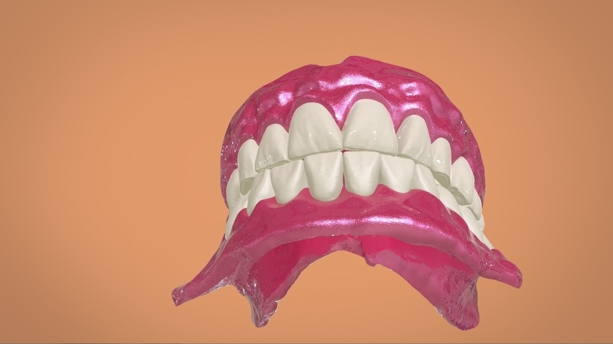 Digital Full Dentures 3D Print 159113