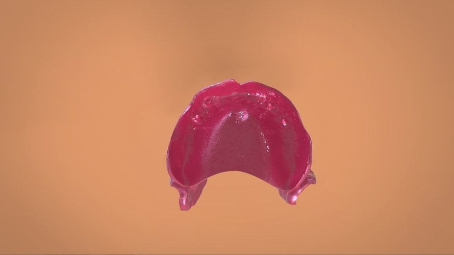 Digital Full Dentures 3D Print 159114
