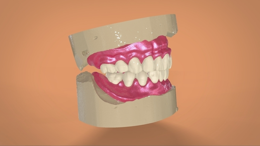 Digital Full Dentures 3D Print 159116