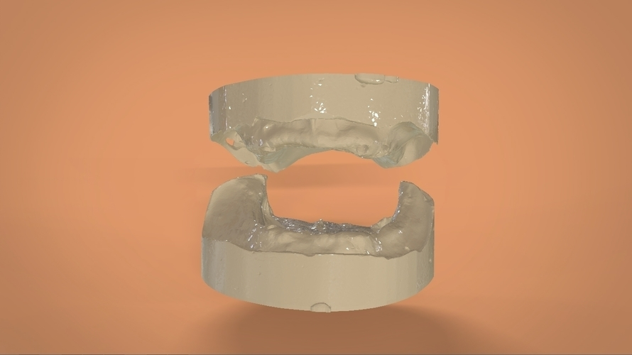 Digital Full Dentures 3D Print 159119