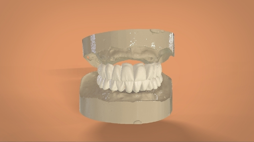 Digital Full Dentures 3D Print 159120