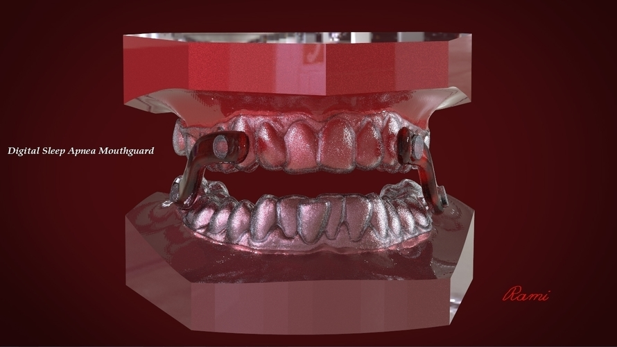 Digital Sleep Apnea Mouthguard 3D Print 159851