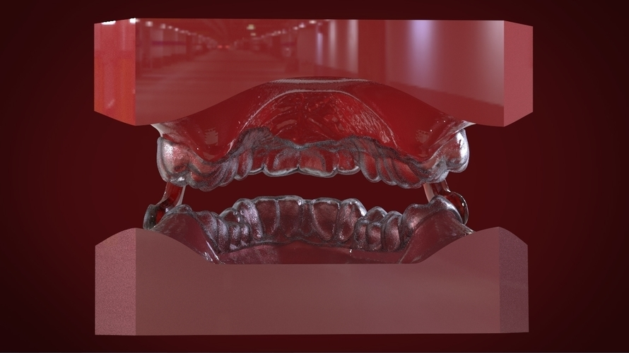 Digital Sleep Apnea Mouthguard 3D Print 159853