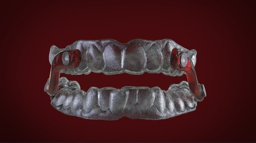 Digital Sleep Apnea Mouthguard 3D Print 159856