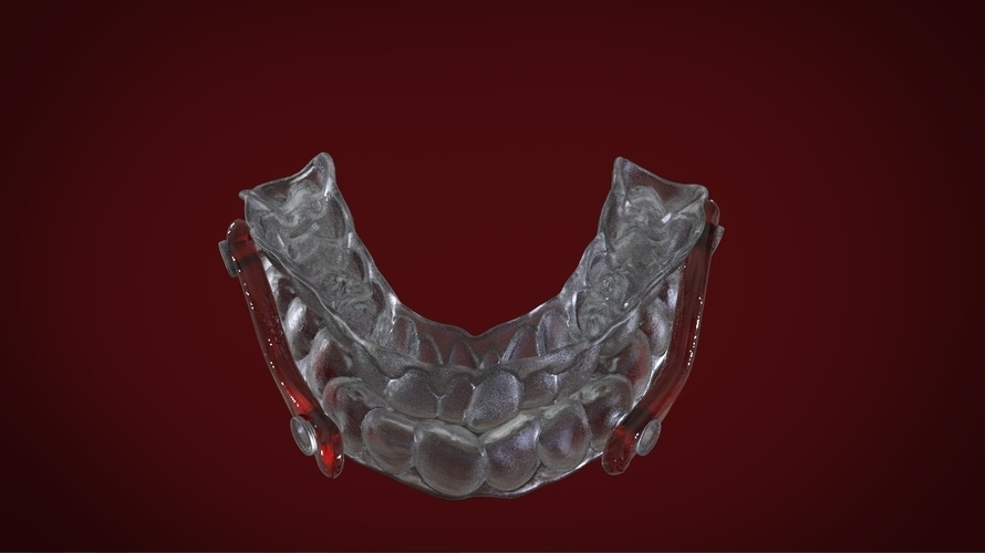 Digital Sleep Apnea Mouthguard 3D Print 159858