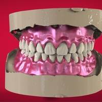 Small Digital Full Dentures for 3D Printing 3D Printing 160493