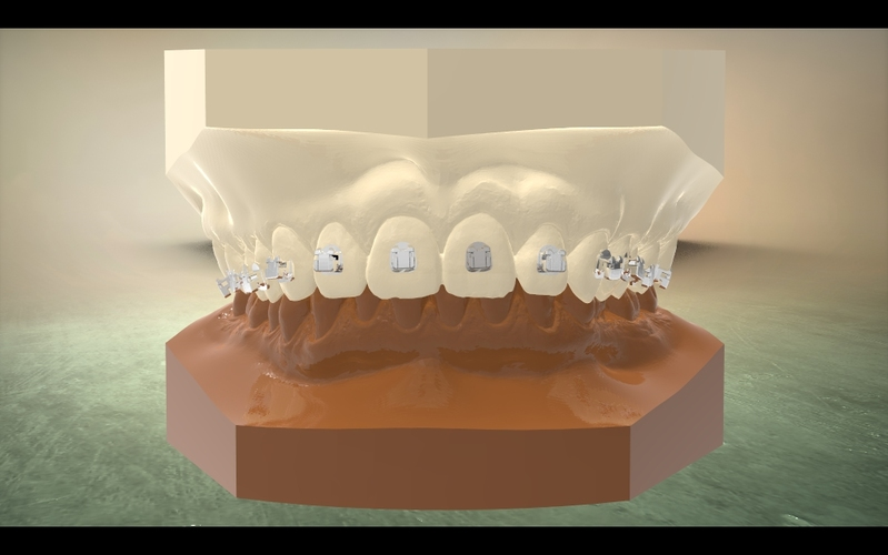 Digital Orthodontic Model with Brackets 3D Print 16585