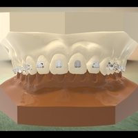 Small Digital Orthodontic Model with Brackets 3D Printing 16585