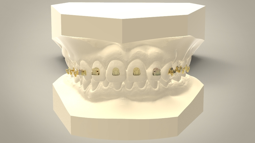 Digital Orthodontic Model with Brackets 3D Print 16587