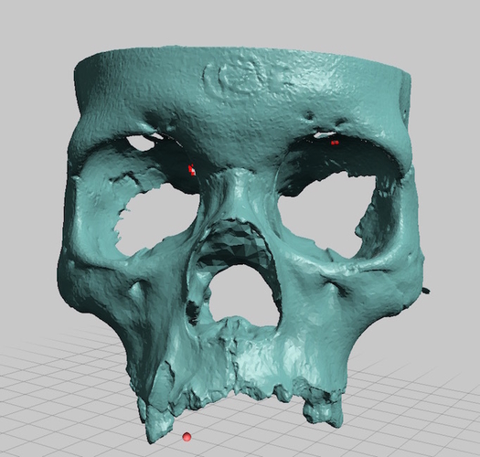 Partial Human Skull, Asian Ancestry, Facial Region Scan 3D Print 166769
