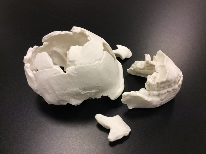 Homo Naledi Skull Reconstruction - Lower Face 3D Print 166787