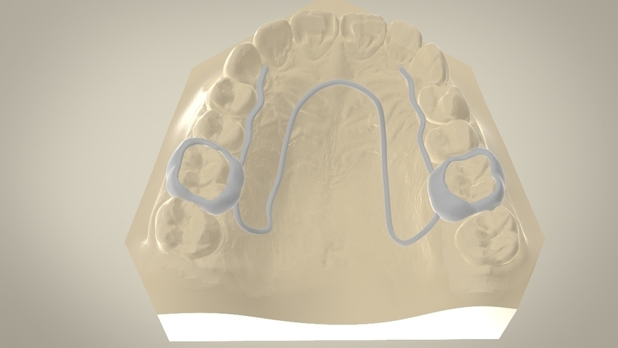 Digital W Arch Appliance (Orthodontic Appliance) 3D Print 16919