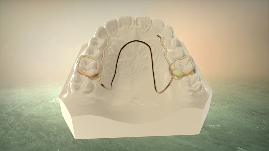 Digital W Arch Appliance (Orthodontic Appliance) 3D Print 16920