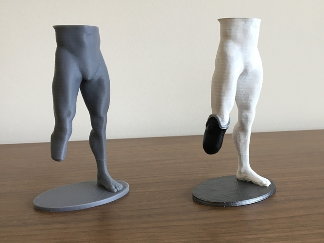Transtibial (below-knee) limb loss/difference model for prosthet 3D Print 184393