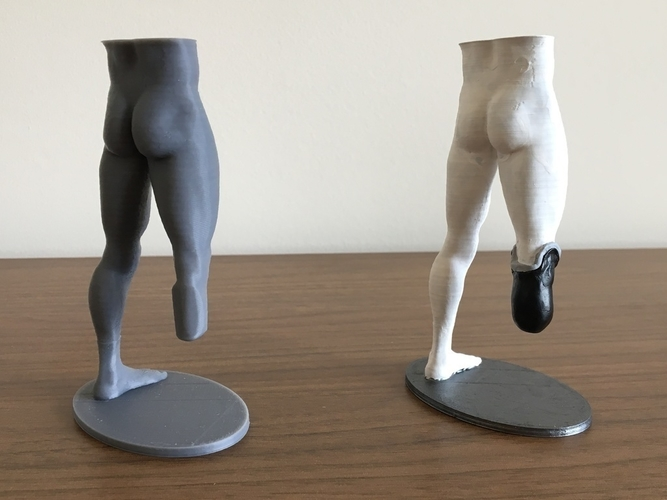 Transtibial (below-knee) limb loss/difference model for prosthet 3D Print 184394