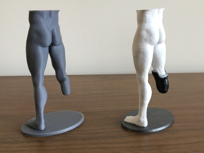 Transtibial (below-knee) limb loss/difference model for prosthet 3D Print 184395
