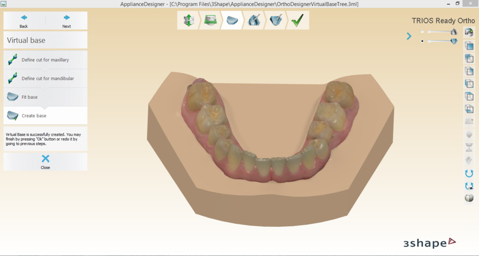 Digital Orthodontic Study Models with Virtual Bases 3D Print 191756