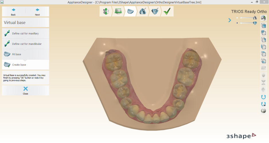 Digital Orthodontic Study Models with Virtual Bases 3D Print 191757