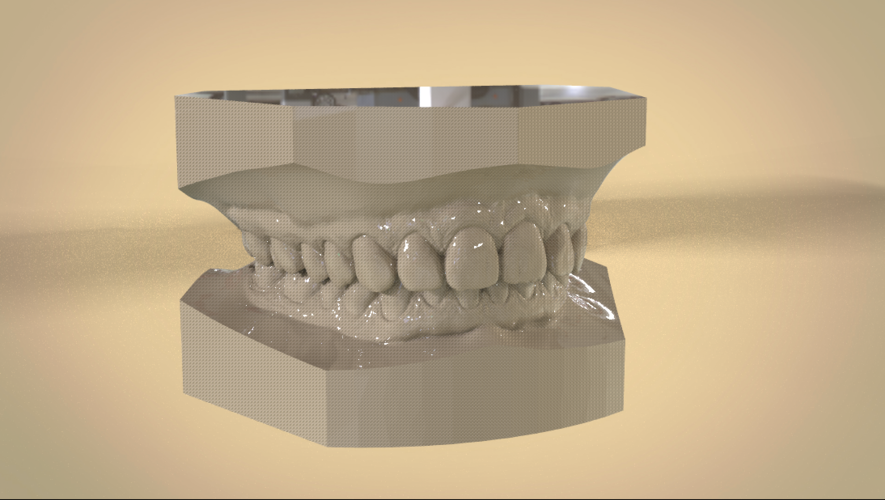 Digital Orthodontic Study Models with Virtual Bases 3D Print 191758