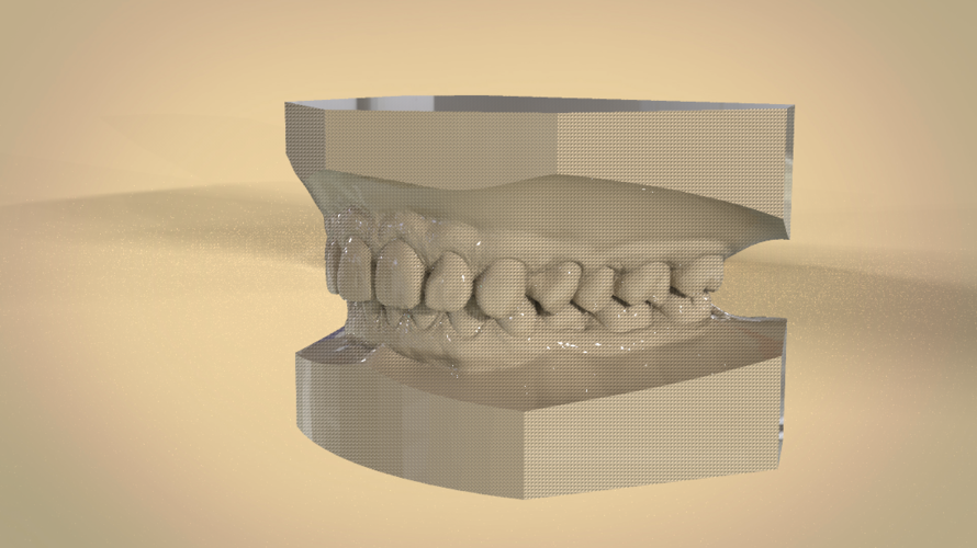Digital Orthodontic Study Models with Virtual Bases 3D Print 191759