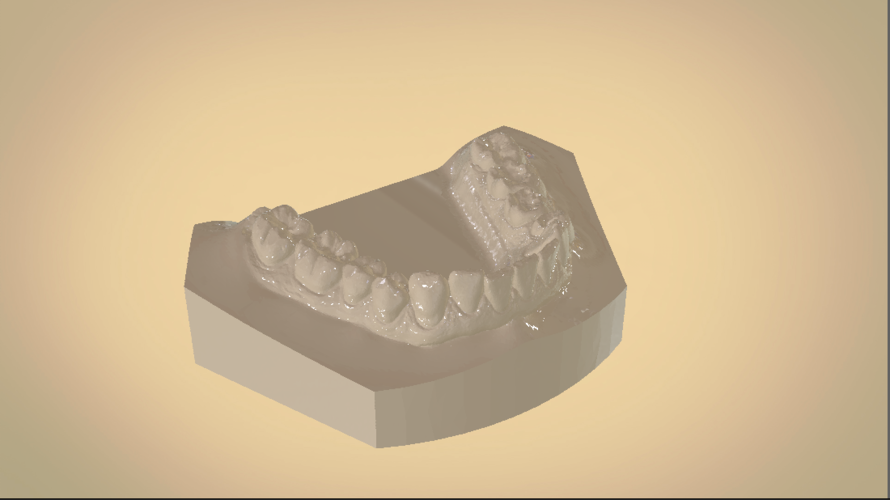 Digital Orthodontic Study Models with Virtual Bases 3D Print 191761